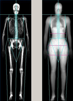 Confirmed: The Lower Your Bone Density, The Lower Your Breast Cancer Risk