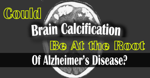 Could Brain Calcification Be At The Root of Alzheimer's Disease?