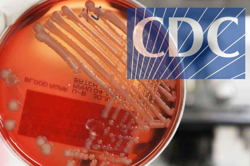 CDC's 'Bacteria of Nightmares': A Monstrosity Created by Outdated Theory and Practice