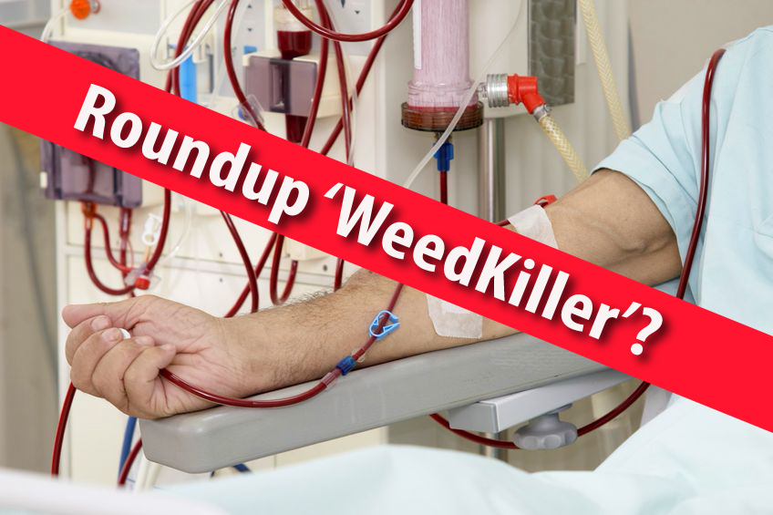 Global Epidemic of Kidney Disease Linked To Roundup (Glyphosate) 'Weedkiller'