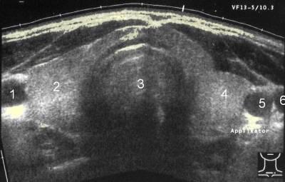 Description: hyroid sonogram jeffrey dach md