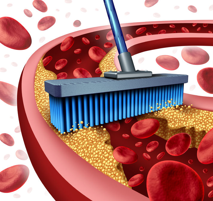 7 Simple Ways to Unclog Your Arteries Naturally