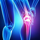 A New Way to Treat Arthritis